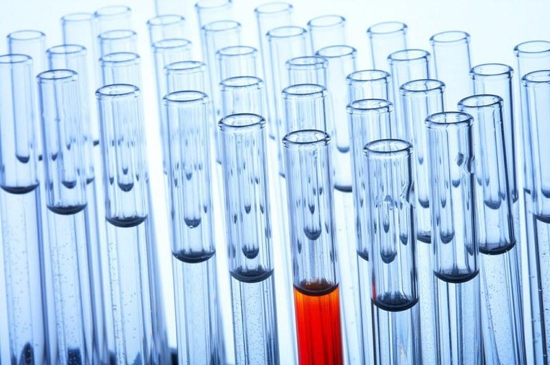 Foto HIV-Test